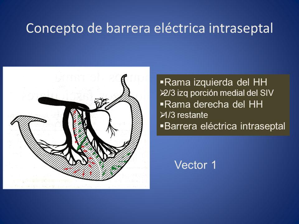 Concepto de barrera eléctrica intraseptal