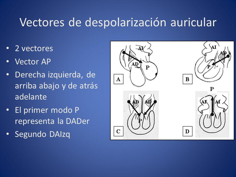 Vectores de despolarización auricular