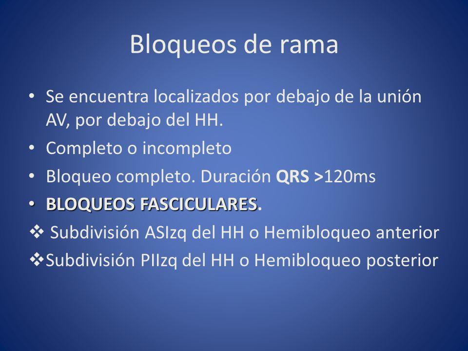 Bloqueos de ramaSe encuentra localizados por debajo de la unión AV, por debajo del HH. Completo o incompleto.