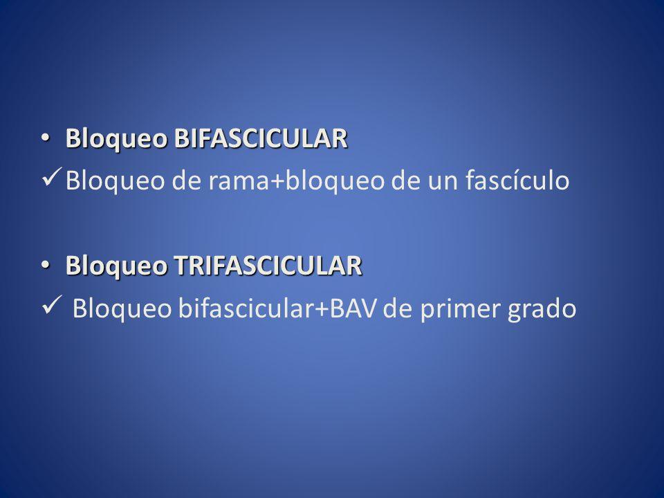 Bloqueo BIFASCICULAR Bloqueo de rama+bloqueo de un fascículo.