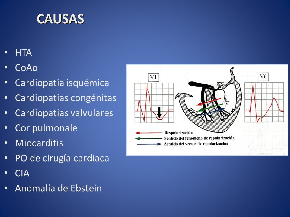CAUSAS HTA CoAo Cardiopatia isquémica Cardiopatias congénitas