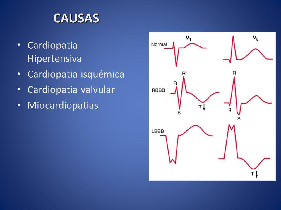 CAUSAS Cardiopatia Hipertensiva Cardiopatia isquémica