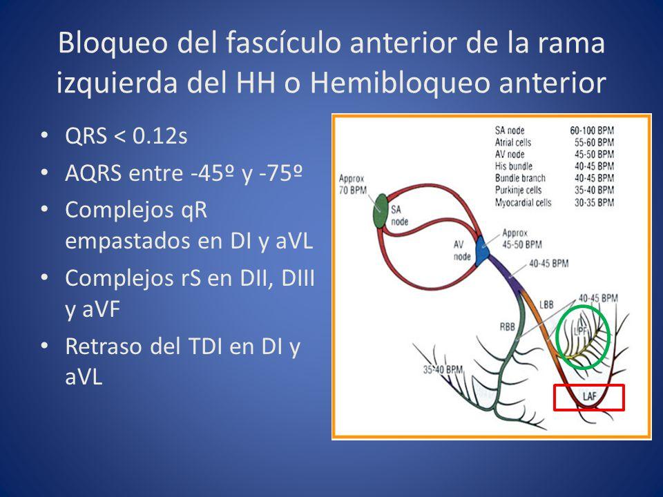Bloqueo del fascículo anterior de la rama izquierda del HH o Hemibloqueo anterior
