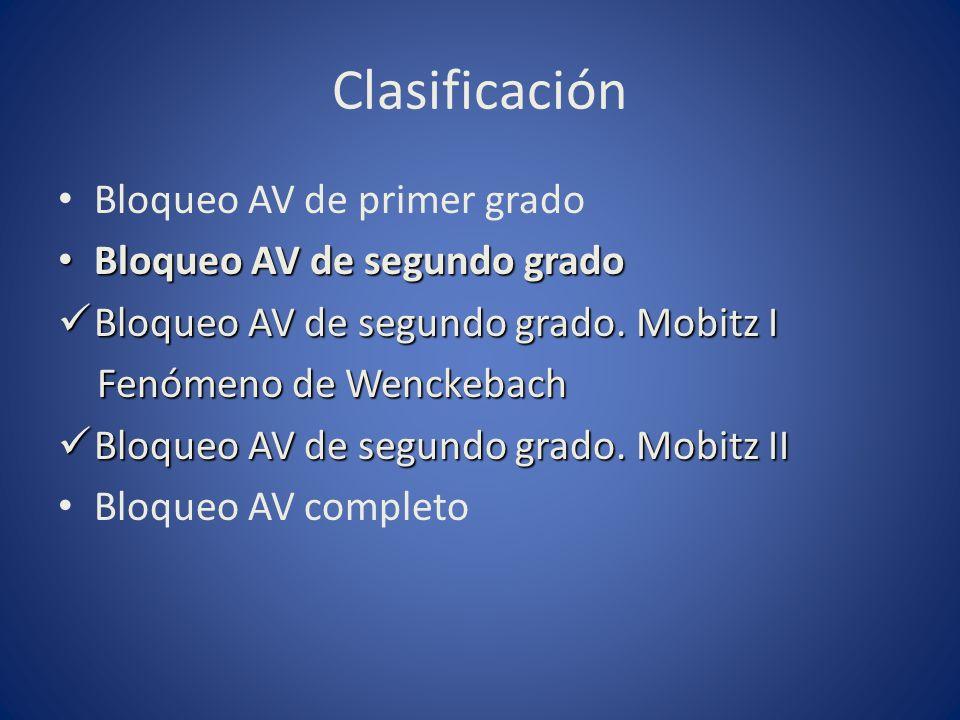 Clasificación Bloqueo AV de primer grado Bloqueo AV de segundo grado