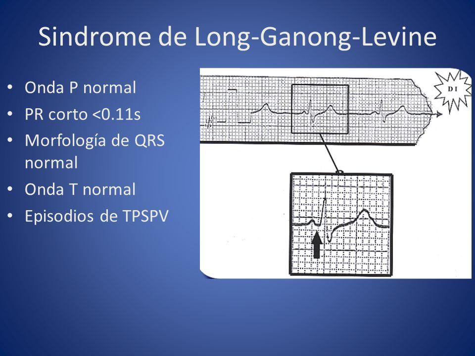 Sindrome de Long-Ganong-Levine