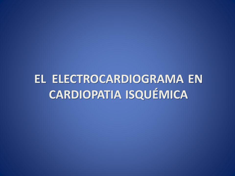 El electrocardiograma en Cardiopatia isquémica