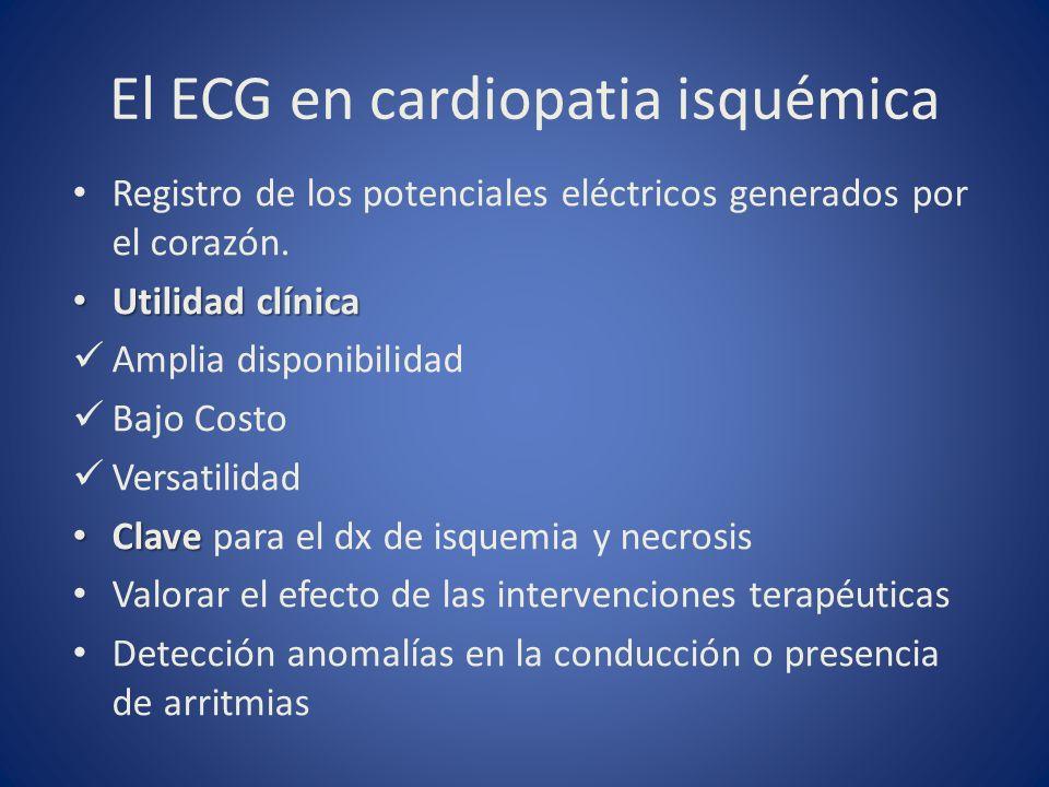 El ECG en cardiopatia isquémica
