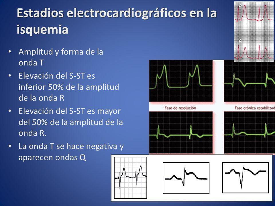 Estadios electrocardiográficos en la isquemia