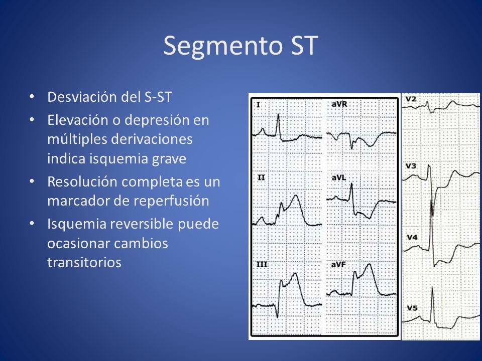 Segmento ST Desviación del S-ST