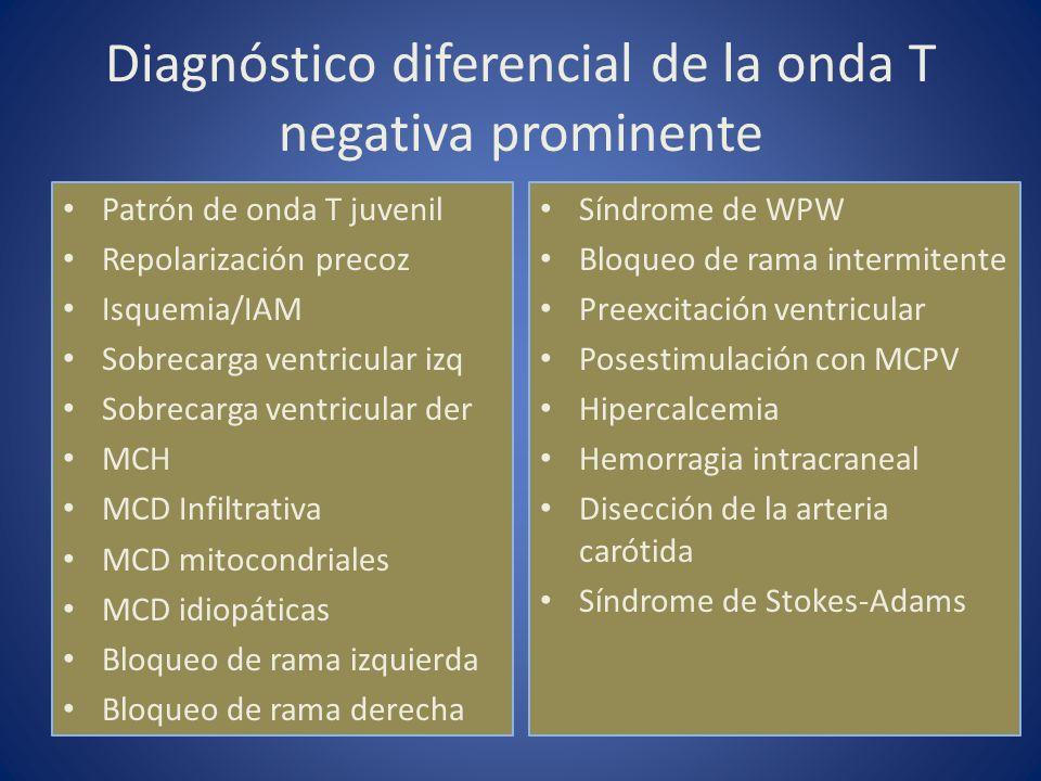 Diagnóstico diferencial de la onda T negativa prominente