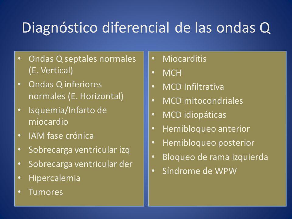 Diagnóstico diferencial de las ondas Q