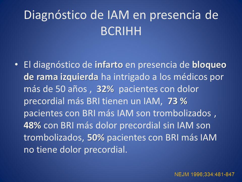 Diagnóstico de IAM en presencia de BCRIHH