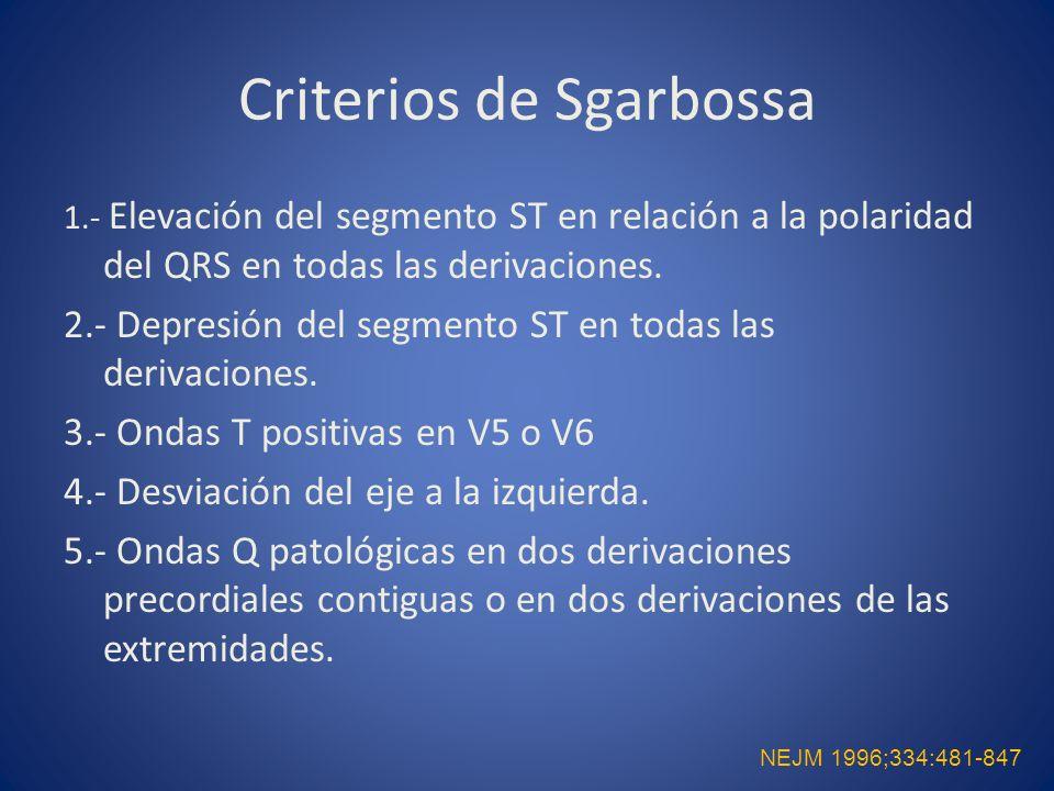 Criterios de Sgarbossa