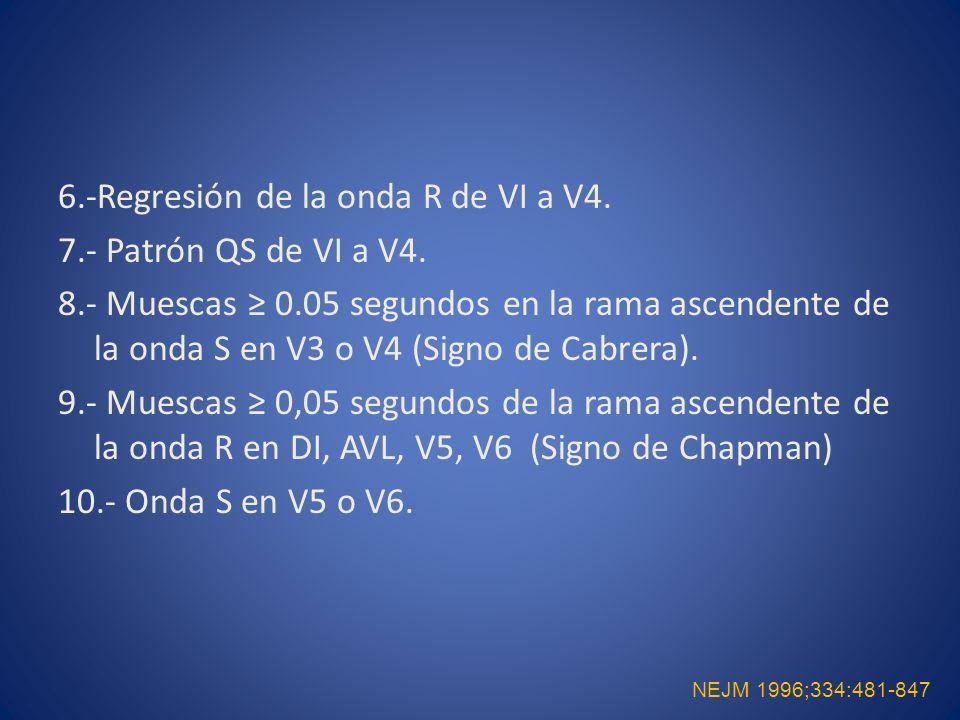 6. -Regresión de la onda R de VI a V4. 7. - Patrón QS de VI a V4. 8