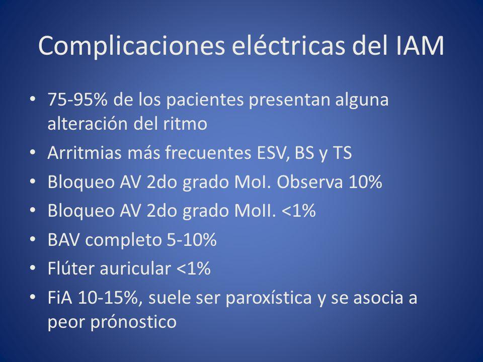 Complicaciones eléctricas del IAM
