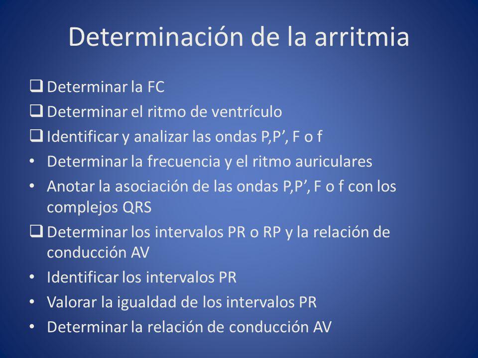 Determinación de la arritmia