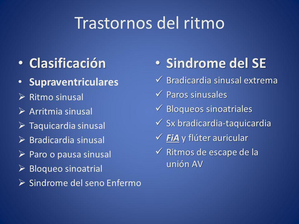 Trastornos del ritmo Clasificación Sindrome del SE Supraventriculares