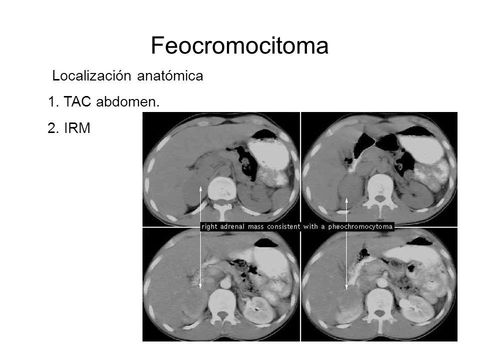 Feocromocitoma Localización anatómica 1. TAC abdomen. 2. IRM