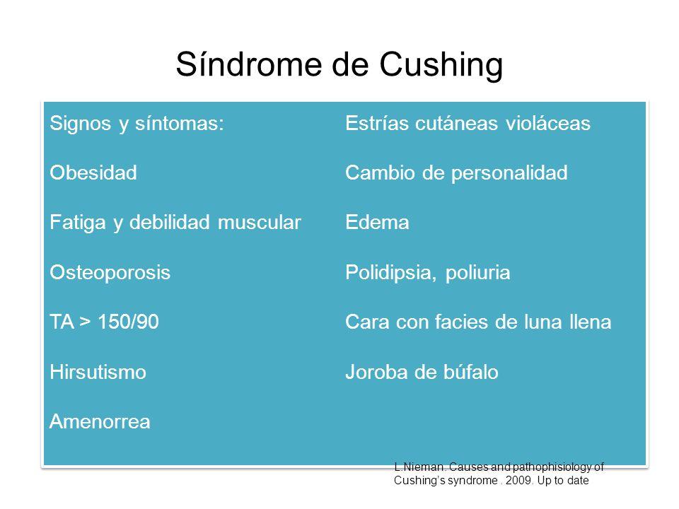 Síndrome de Cushing Signos y síntomas: Estrías cutáneas violáceas