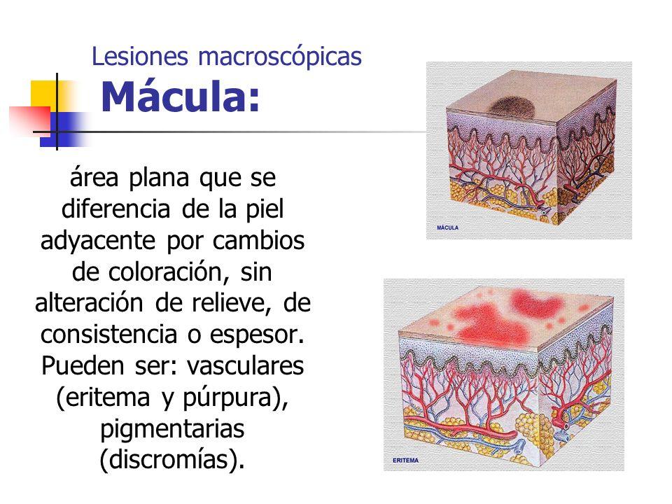 Lesiones macroscópicas Mácula: