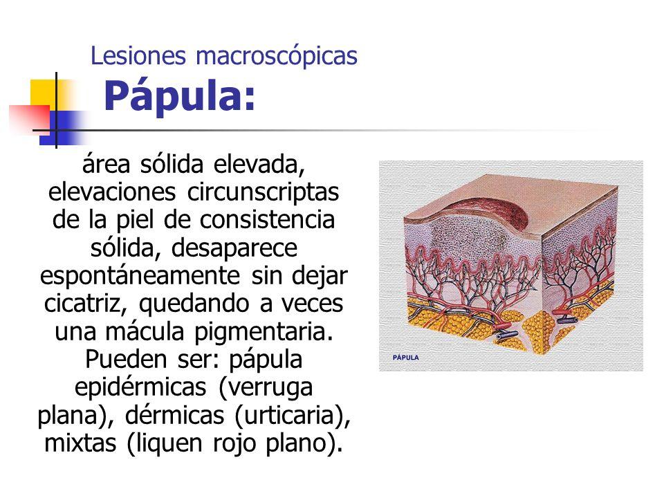Lesiones macroscópicas Pápula: