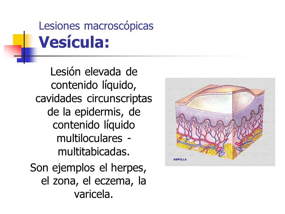 Lesiones macroscópicas Vesícula: