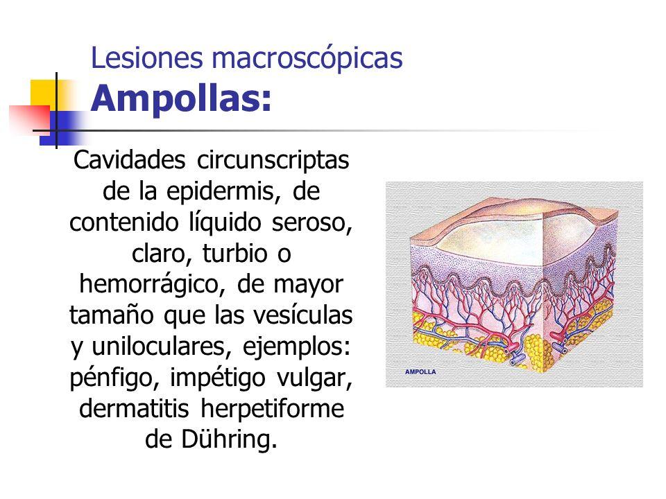 Lesiones macroscópicas Ampollas: