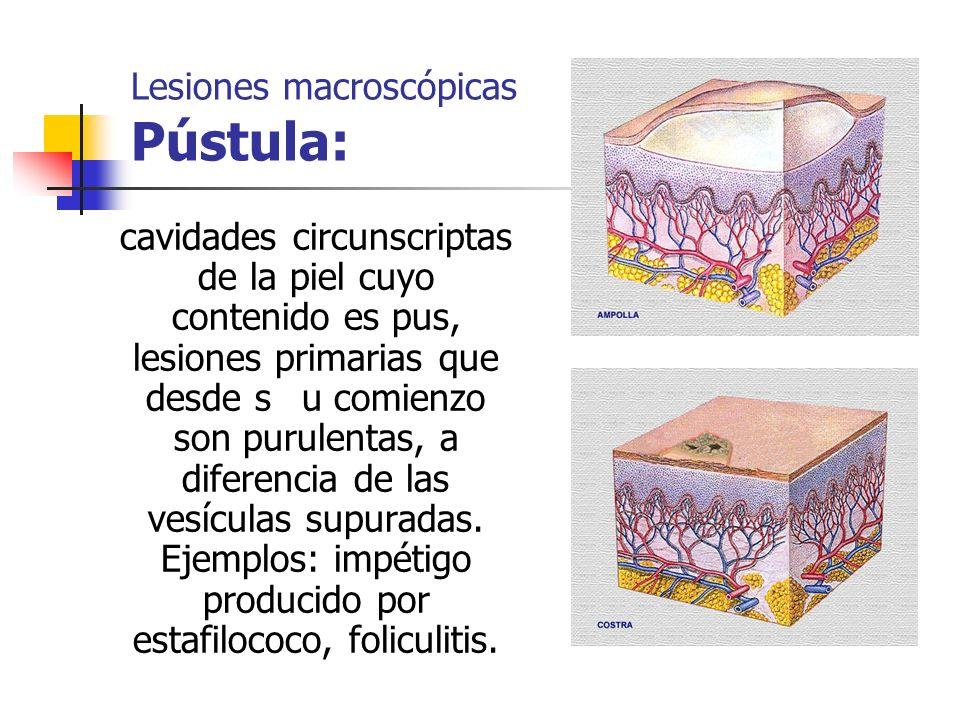 Lesiones macroscópicas Pústula: