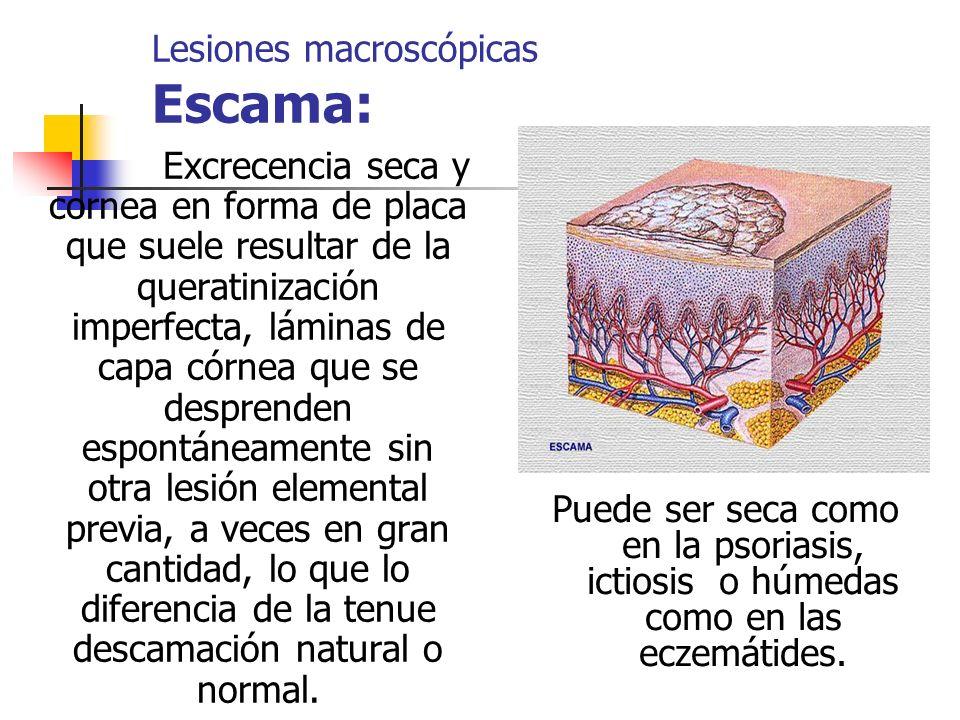 Lesiones macroscópicas Escama: