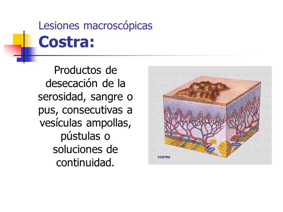Lesiones macroscópicas Costra: