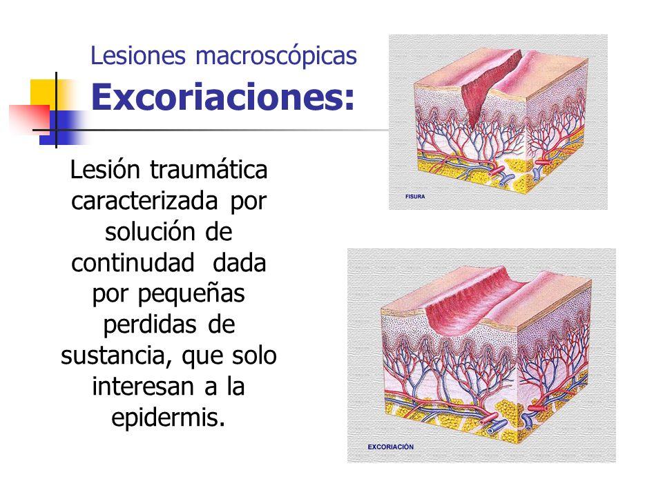 Lesiones macroscópicas Excoriaciones: