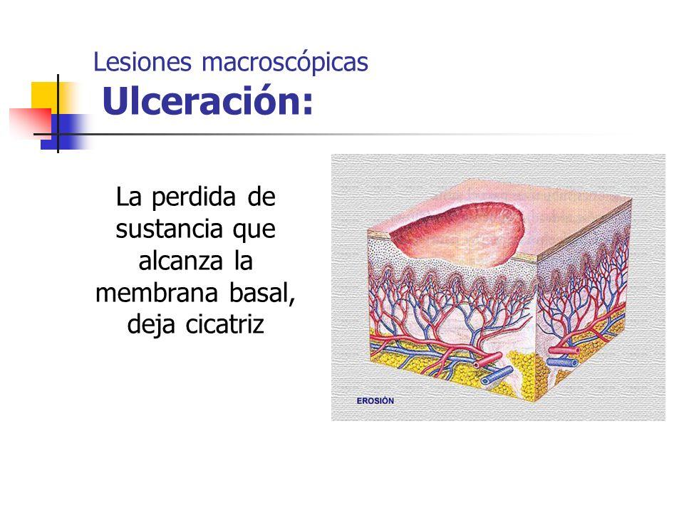 Lesiones macroscópicas Ulceración: