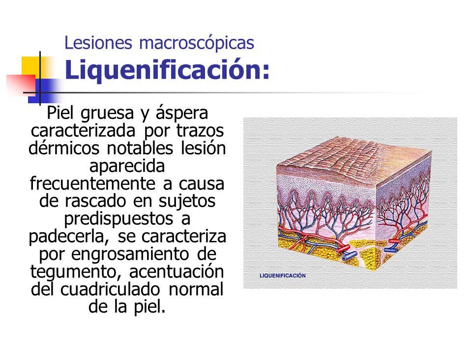 Lesiones macroscópicas Liquenificación: