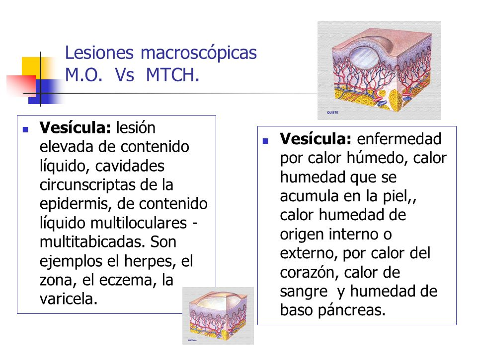 Lesiones macroscópicas M.O. Vs MTCH.