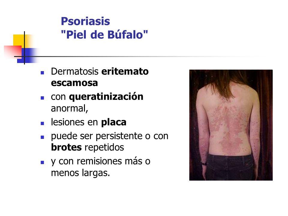 Psoriasis Piel de Búfalo