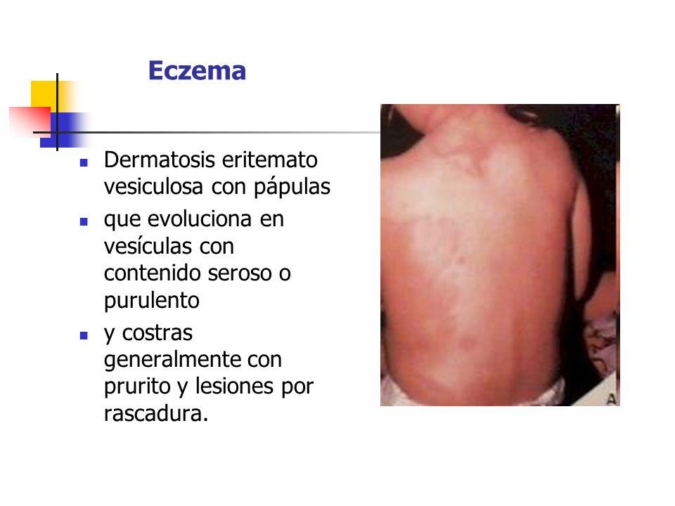 Eczema Dermatosis eritemato vesiculosa con pápulas