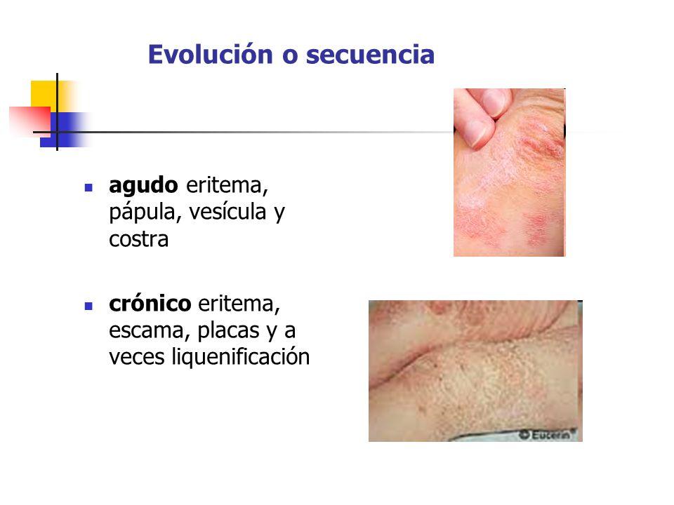 Evolución o secuencia agudo eritema, pápula, vesícula y costra