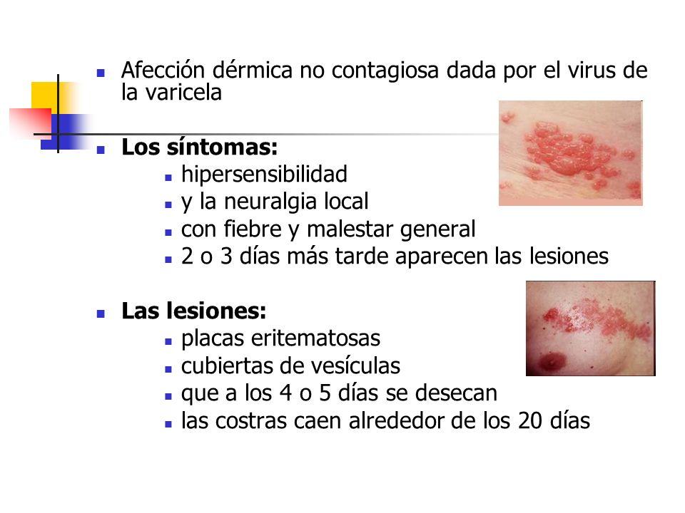 Afección dérmica no contagiosa dada por el virus de la varicela