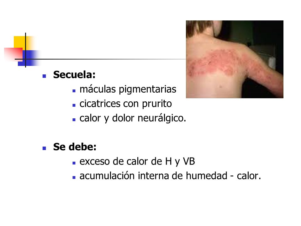 Secuela: máculas pigmentarias. cicatrices con prurito. calor y dolor neurálgico. Se debe: exceso de calor de H y VB.