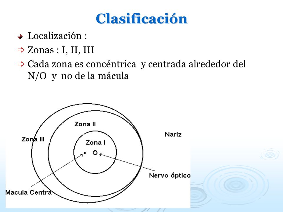 Clasificación Localización : Zonas : I, II, III