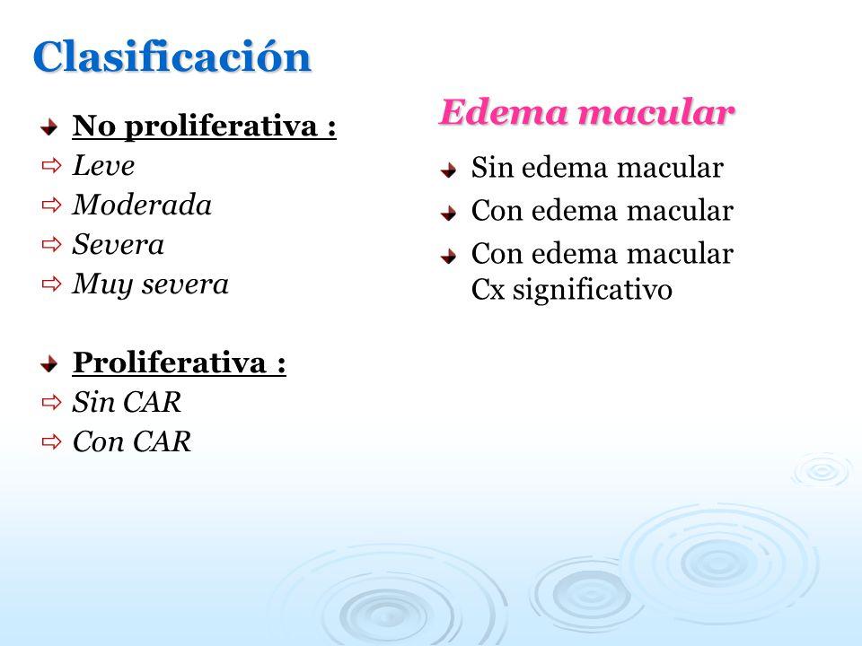 Clasificación Edema macular No proliferativa : Leve Moderada Severa