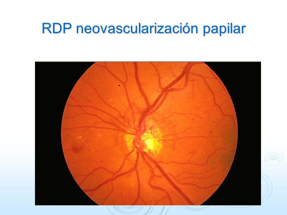 RDP neovascularización papilar