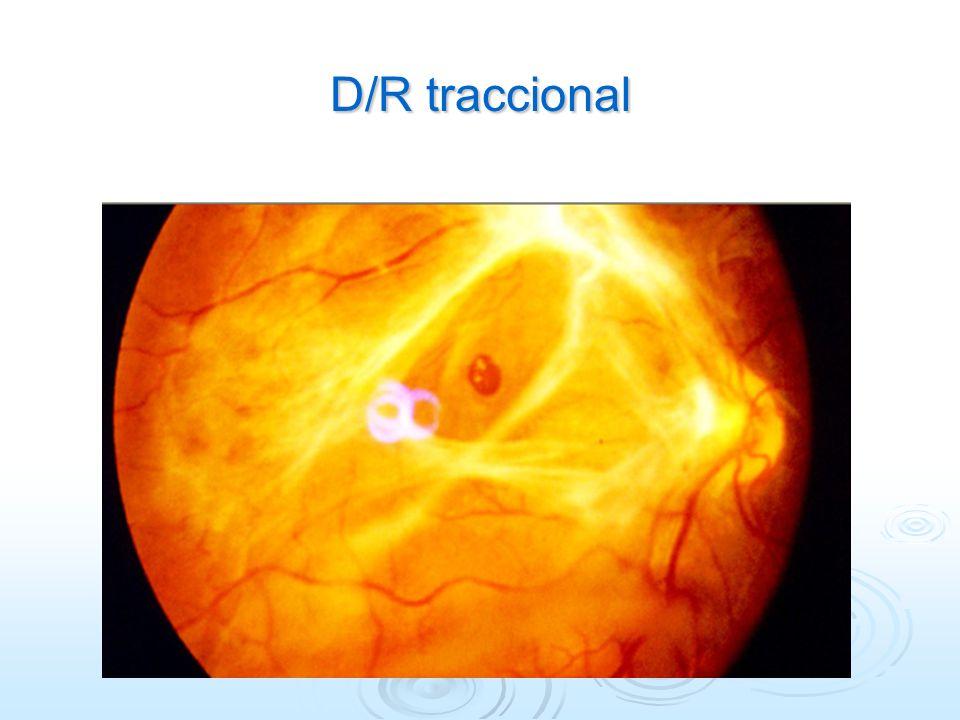 D/R traccional