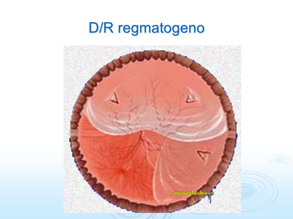 D/R regmatogeno