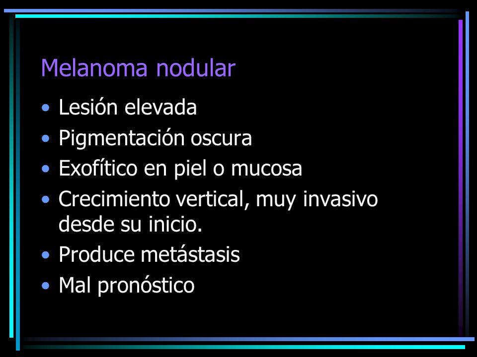 Melanoma nodular Lesión elevada Pigmentación oscura