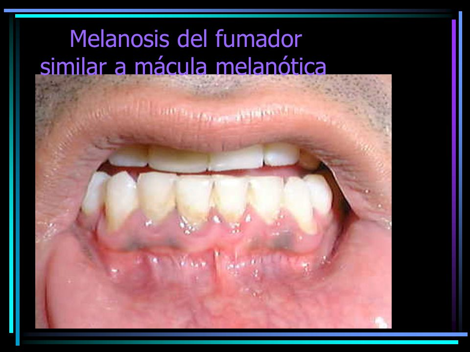 Melanosis del fumador similar a mácula melanótica