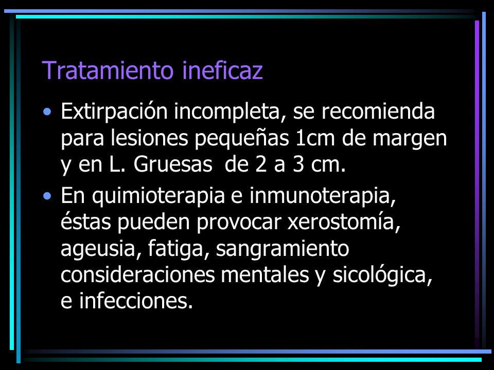 Tratamiento ineficaz Extirpación incompleta, se recomienda para lesiones pequeñas 1cm de margen y en L. Gruesas de 2 a 3 cm.