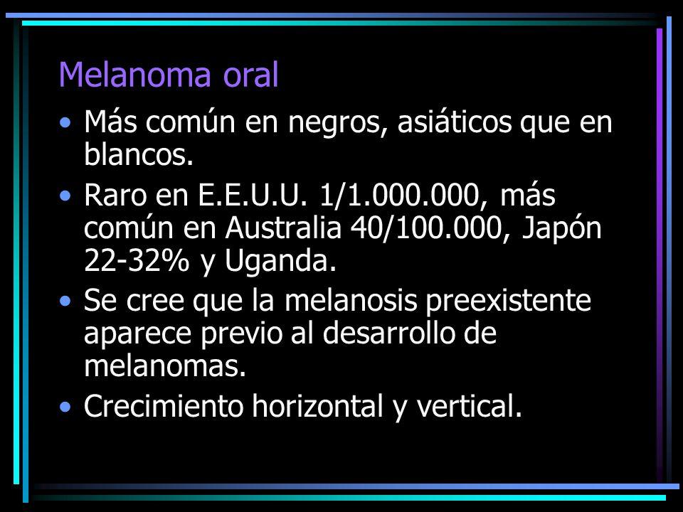 Melanoma oral Más común en negros, asiáticos que en blancos.