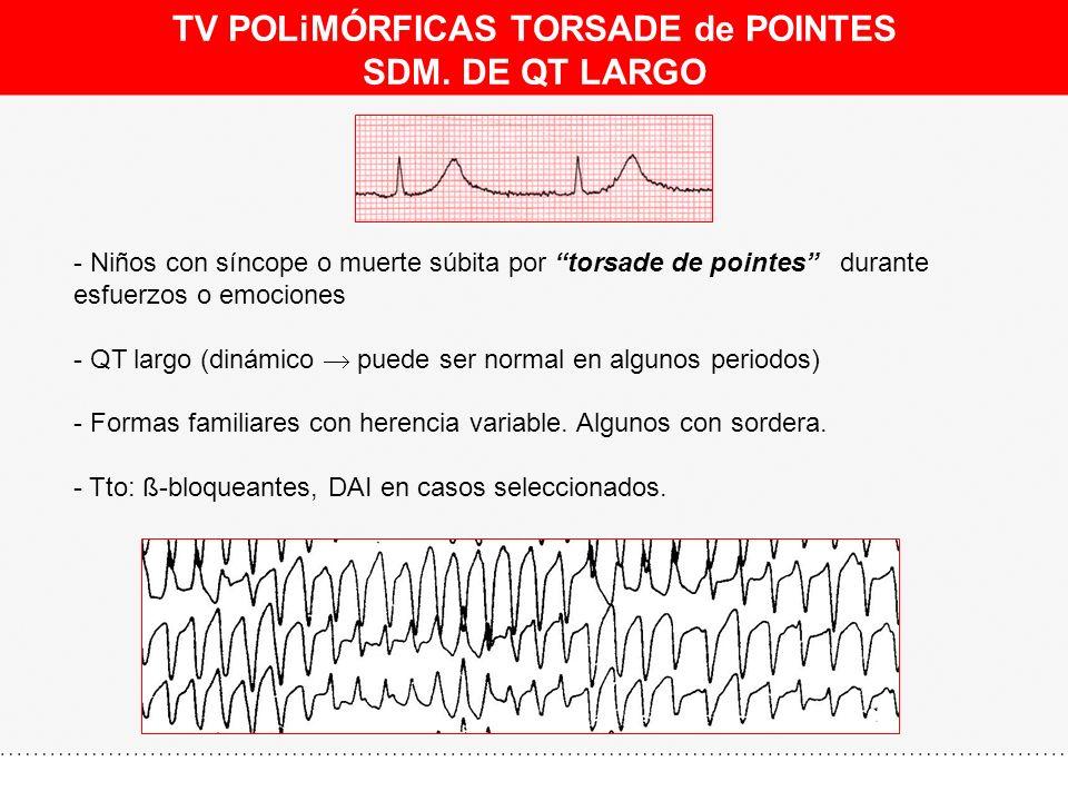 TV POLiMÓRFICAS TORSADE de POINTES SDM. DE QT LARGO