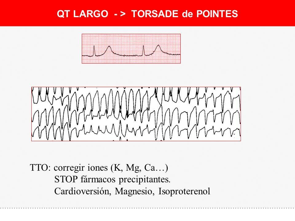QT LARGO - > TORSADE de POINTES